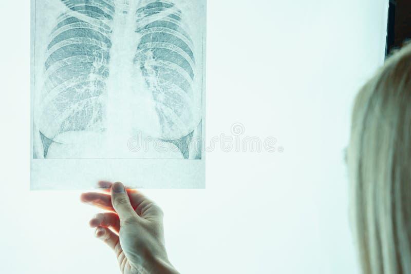 Fluorography женского доктора рассматривая, рентгеновский снимок Desease легкего и концепция обработки стоковое фото
