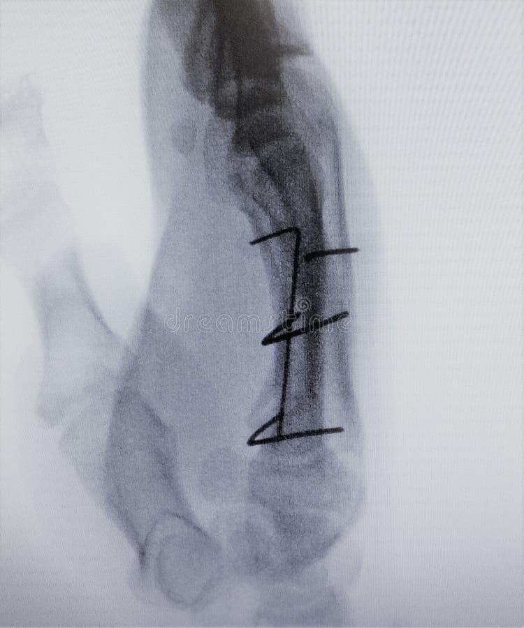 Fluoroscopic Röntgenstrahlbildbruchfinger-Indexprüfung stockfoto