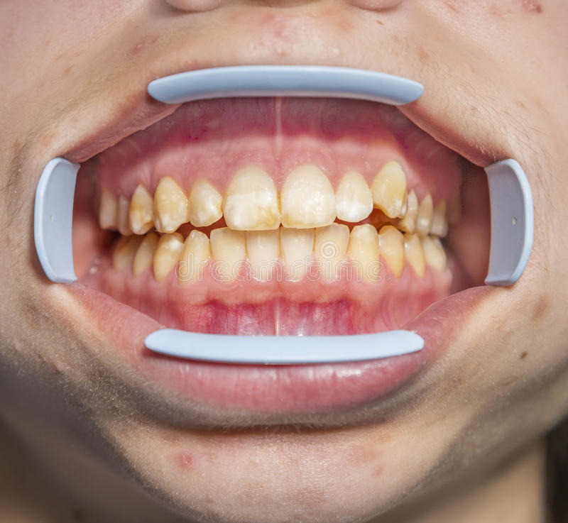 Fluorosis dentaire images stock