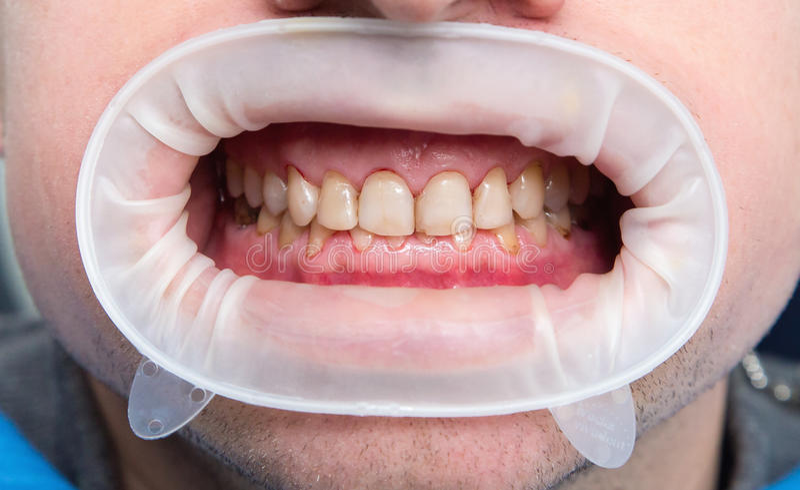 Fluorosis dental foto de archivo libre de regalías