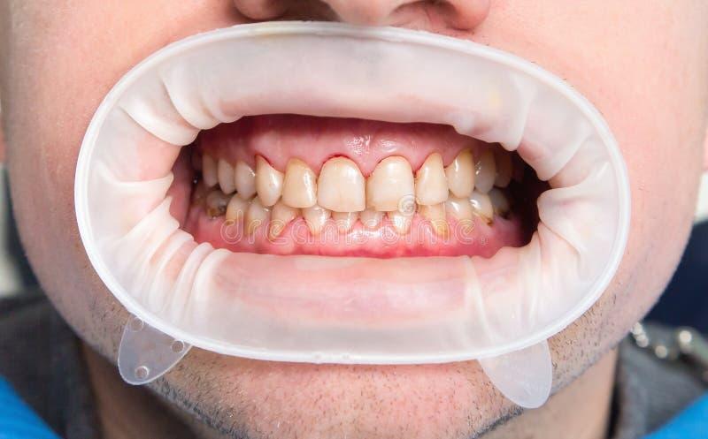 Fluorosis dental foto de archivo