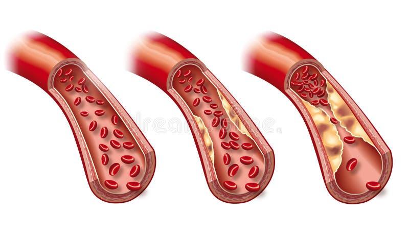 Flusso sanguigno in arteria sana e arteriosclerosi iniziale, illustrazione 3D illustrazione di stock