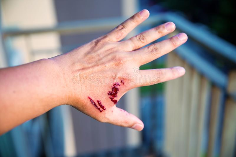 Focus dog bite wound and blood on hand. Infection and Rabies concept. stock image
