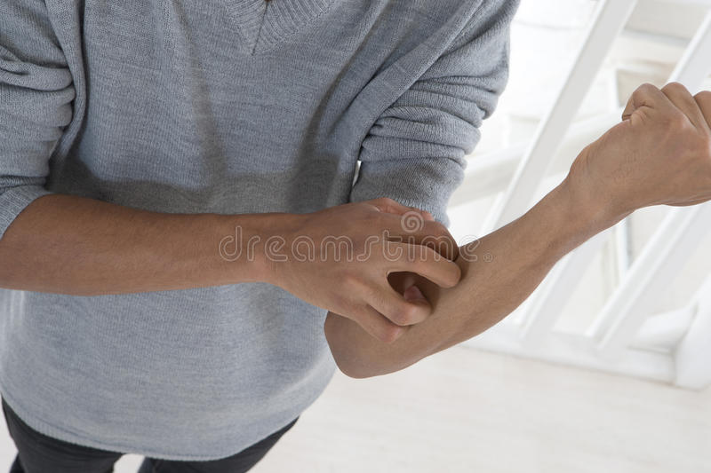 FOCUS ON MALE ITCHING ARM. Joung mulatto man with itching arm stock image