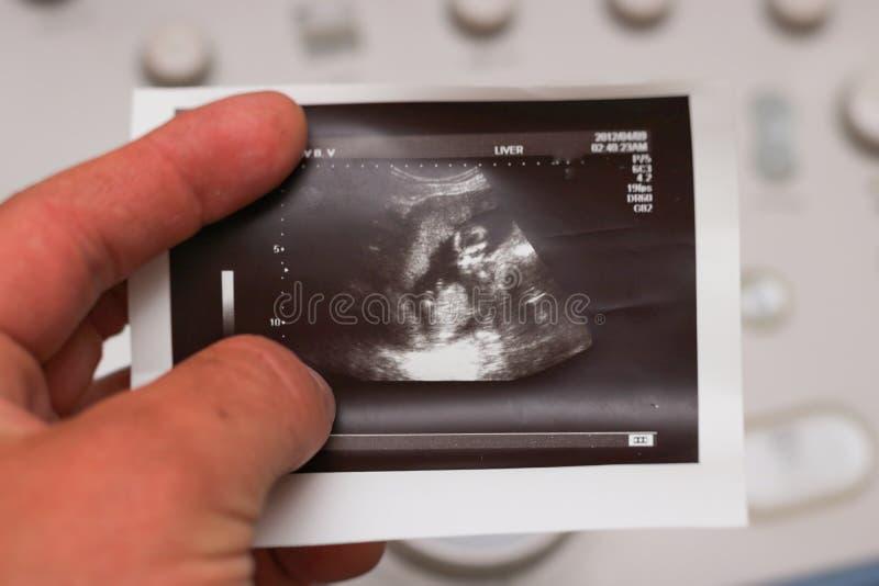 Foetus in de baarmoeder royalty-vrije stock afbeeldingen
