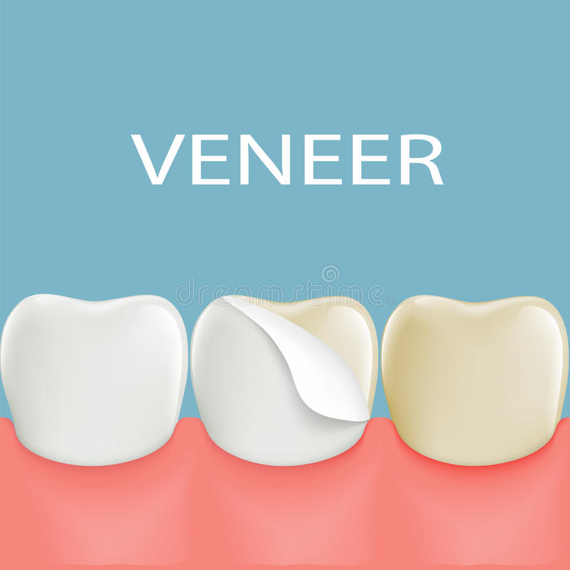 Folheados dentais em um dente humano estoque ilustração do vetor