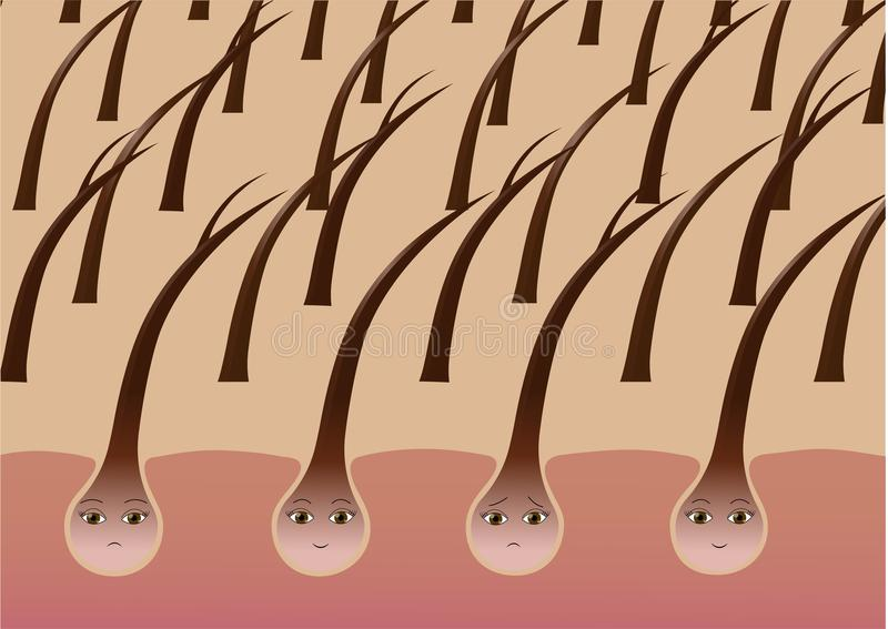 Follicules pileux de bande dessinée sur le cuir chevelu souffrant des pointes fourchues illustration libre de droits