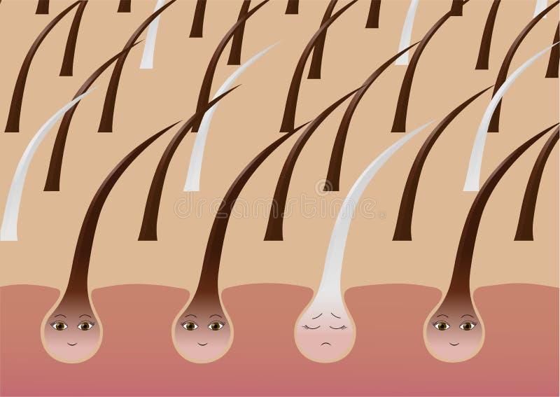 Follicules pileux de bande dessinée sur le cuir chevelu souffrant de la pigmentation illustration de vecteur