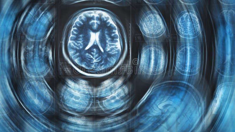 Fond de balayage de cerveau de Mri, tomographie, avec l'effet de mouvement de cercle de tache floue photos stock