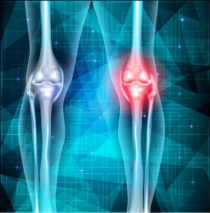 Fondo del triangolo dell'estratto di dolori articolari del ginocchio royalty illustrazione gratis