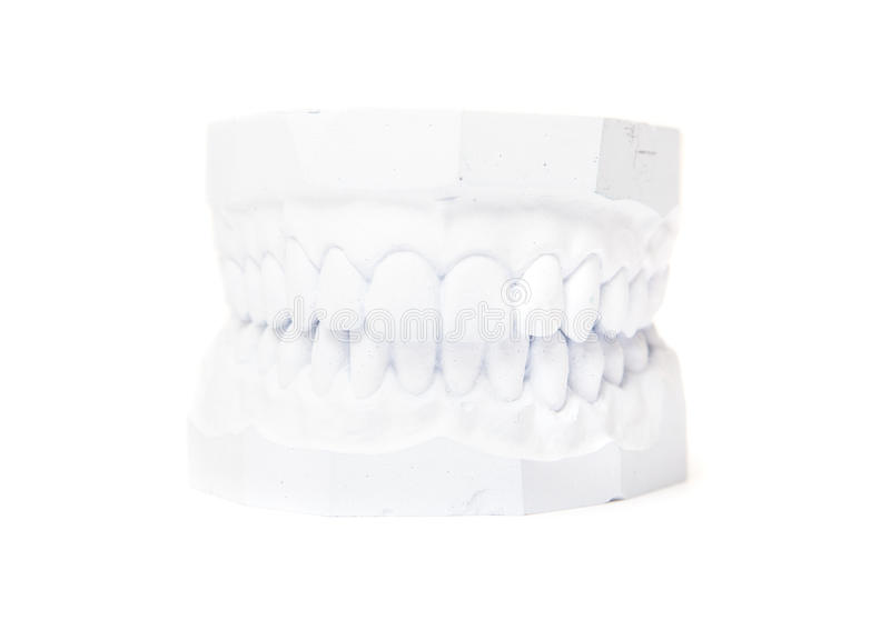 Fonte de plâtre des dents photographie stock libre de droits