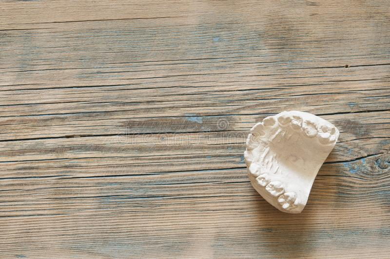 Fonte de plâtre modèle de gypse pour la molaire dentaire dans le laboratoire photographie stock libre de droits