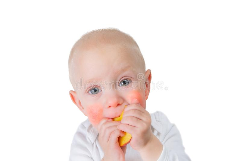 Food allergy concept - baby with dermatitis on cheeks stock photos