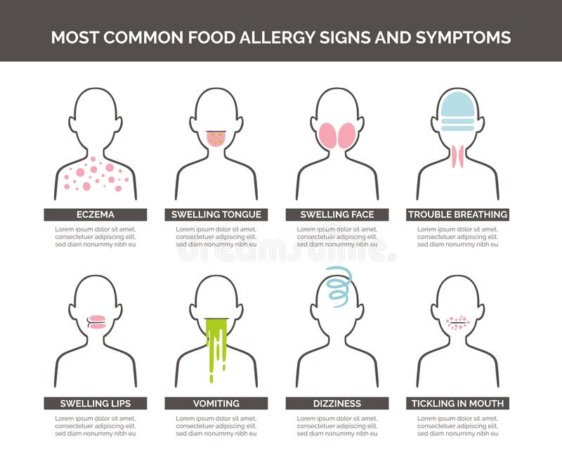 Food allergy signs and symptoms. Most common food allergy signs and symptoms icon set. Vector illustration stock illustration