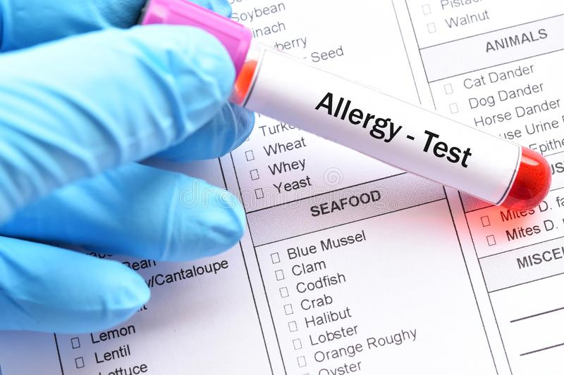 Food allergy test. Test tube with blood sample for food allergy test stock photography