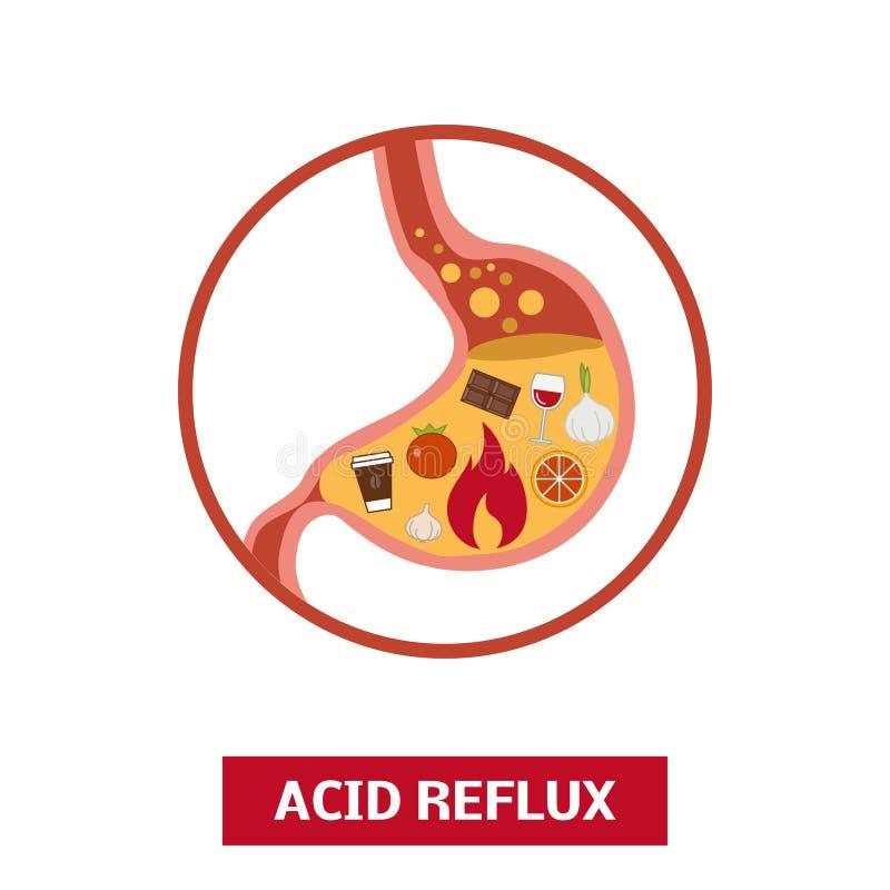 Foods który powoduje zjadliwego reflux ilustracji
