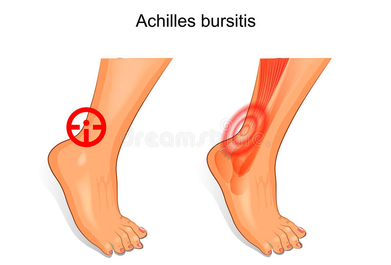 The foot is affected by Achilles bursitis royalty free illustration