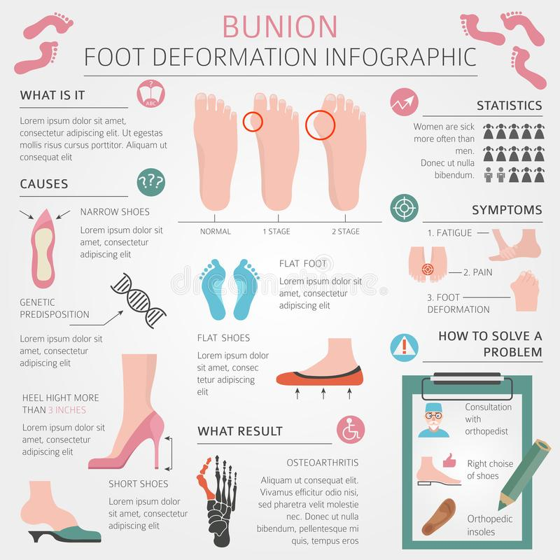 Foot deformation as medical desease infographic. Causes of bunion. Vector illustration royalty free illustration
