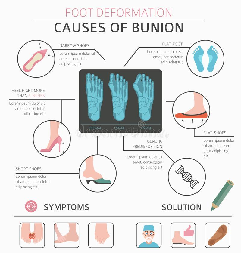 Foot deformation as medical desease infographic. Causes of bunion vector illustration
