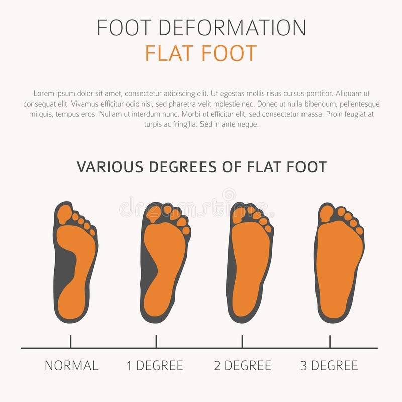 Foot deformation as medical desease infographic. Causes of Flat. Vector illustrations vector illustration
