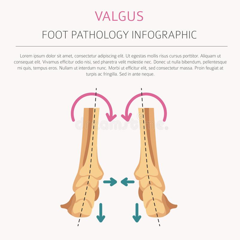 Foot deformation as medical desease infographic. Valgus and varus defect. Vector illustration stock illustration