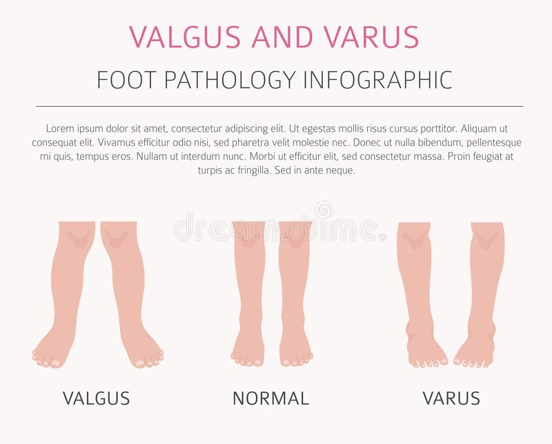 Foot deformation as medical desease infographic. Valgus and varus defect. Vector illustration vector illustration