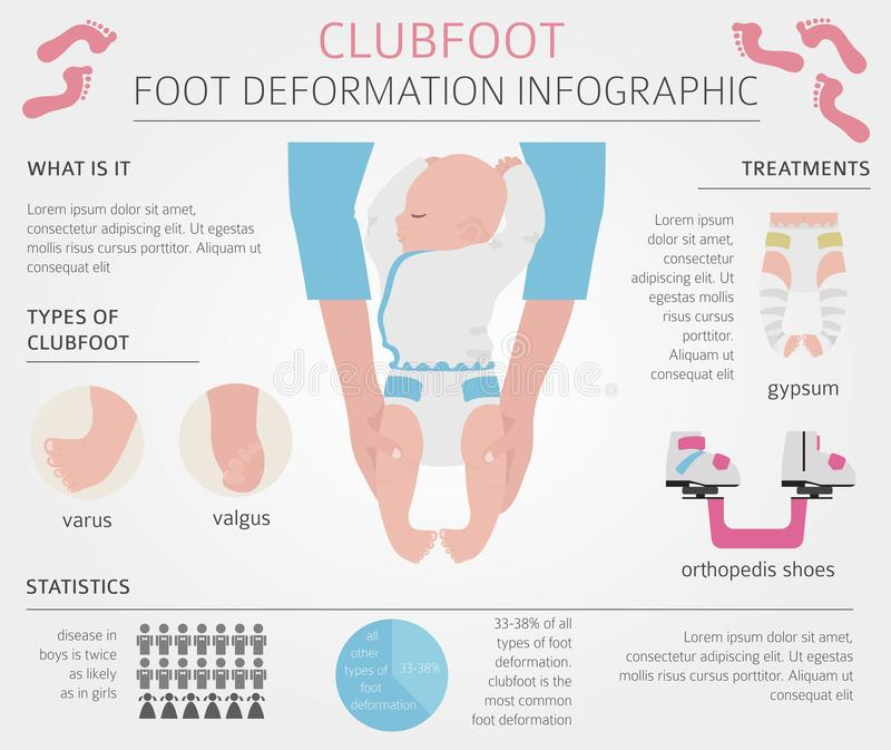 Foot deformation, medical desease infographic. Clubfoot defect. Vector illustration royalty free illustration
