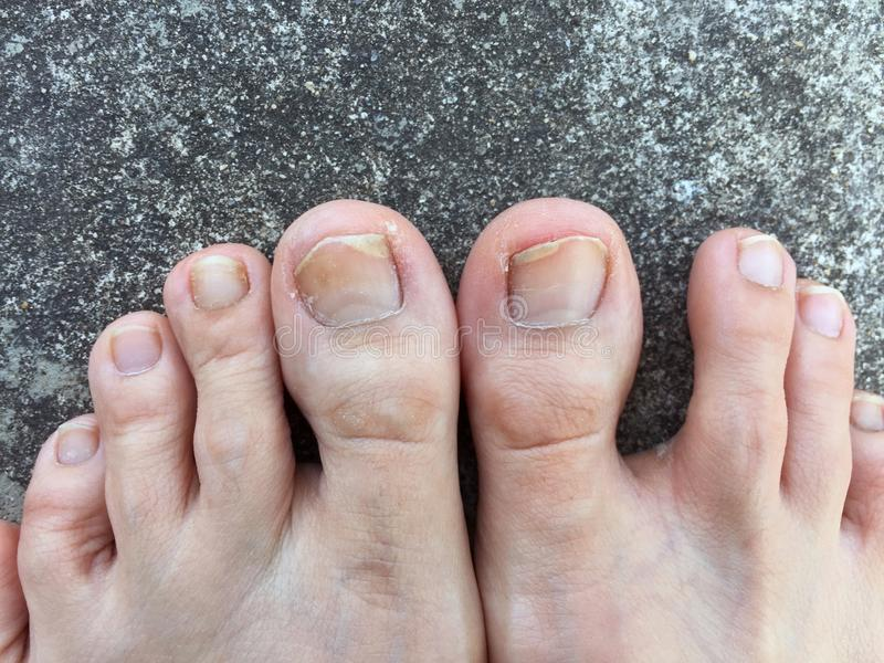 Foot And Fingernails On Cement,Top View. Fungal Infection Of Nails ...