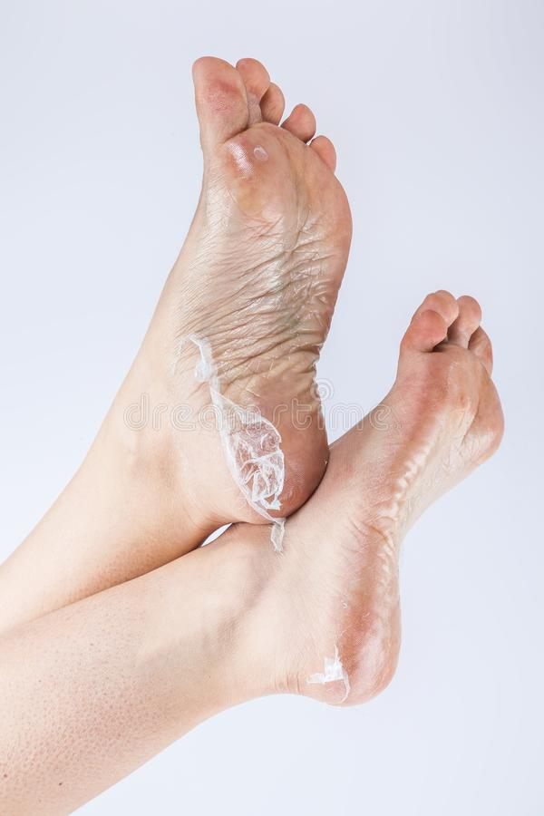 Foot Fungus With Cracked Heel, Rear View Stock Photo - Image of bare ...