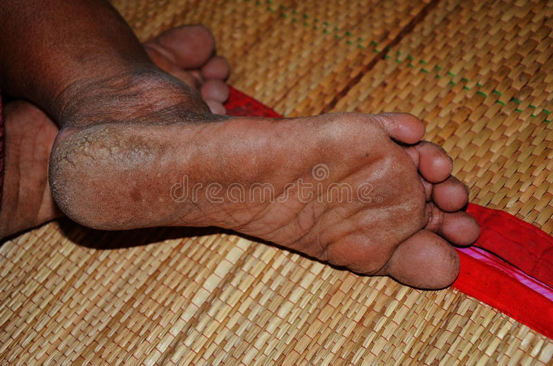 Foot of hard working woman. Closeup to foot of hard working woman royalty free stock photography