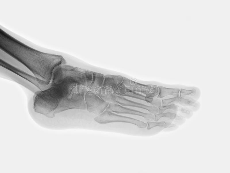 Foot. Human foot on roentgenogram isolated stock photography