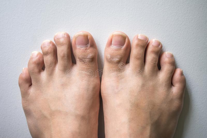 The Foot And Long Nail Toes On White Concrete Background. Stock ...