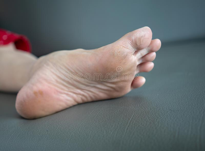 Foot problem - Cracks on the thumb are generally stock image
