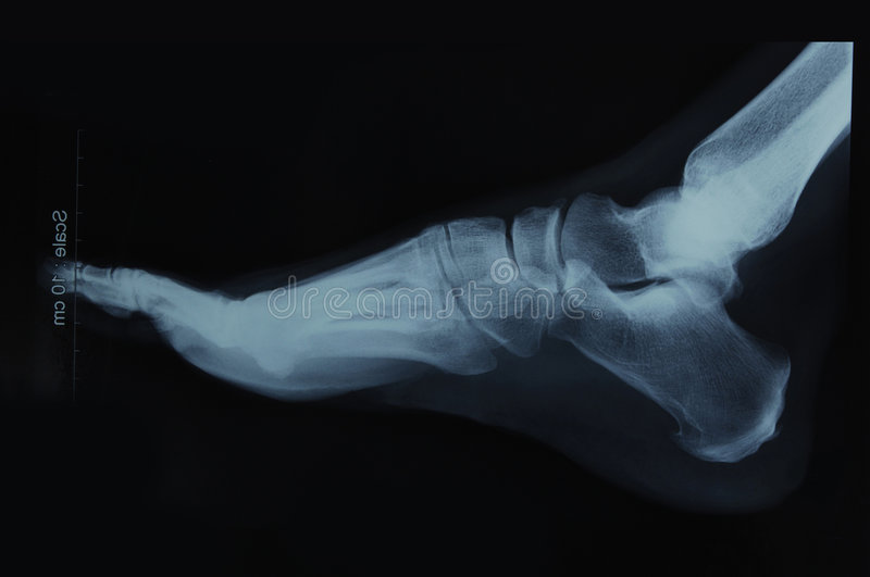 Foot x-ray. X-ray film of a human foot- side view royalty free stock photos