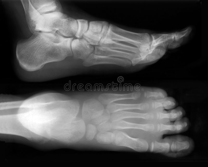 Download Foot-X-Ray stock image. Image of injury, medicine, medical - 2089401