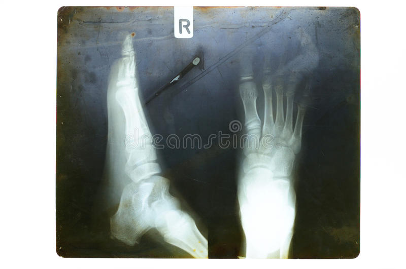 Foot on x-ray film. Old x-ray film with side and top view of right kid foot stock image