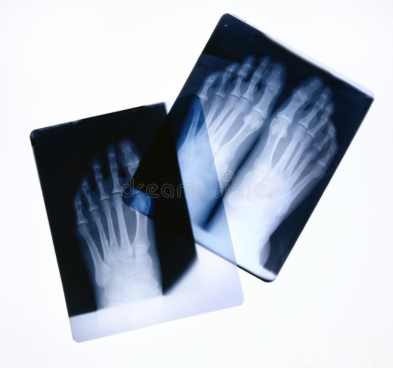 Download Foot X-rays stock image. Image of radiologist, healthcare - 7559209