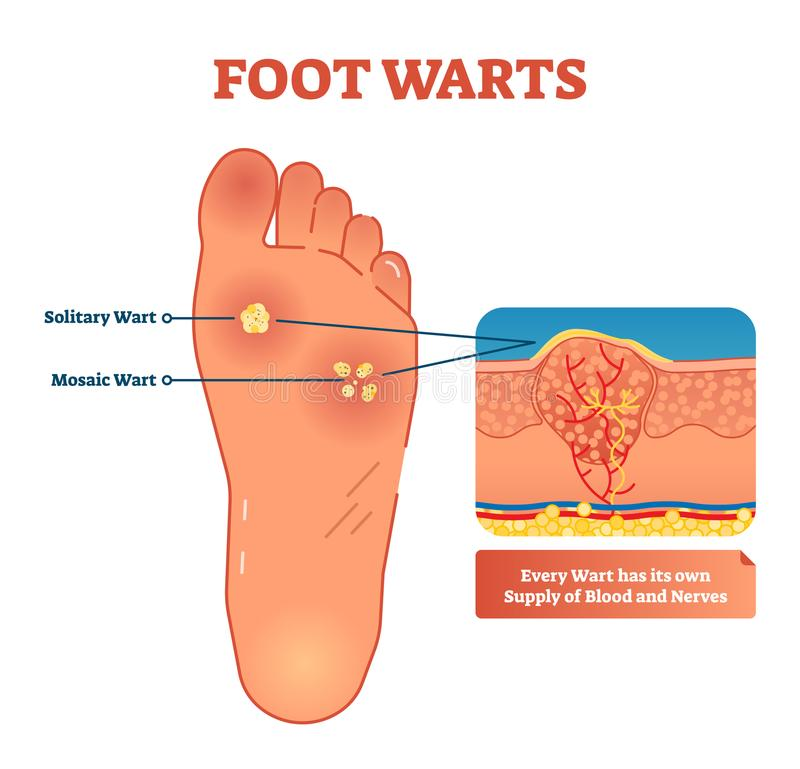 Foot warts vector illustration. Scheme with solitary and mosaic warts. Close-up with wart and its supply of blood and nerves. vector illustration