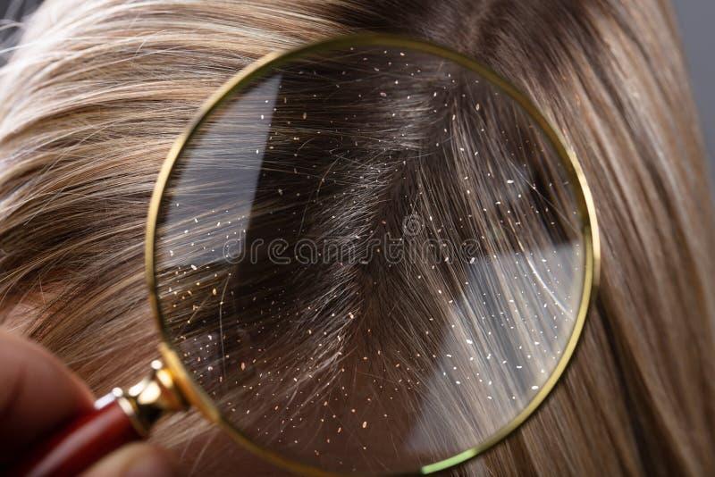 Forfora in lente d'ingrandimento vista attraverso capelli immagine stock libera da diritti