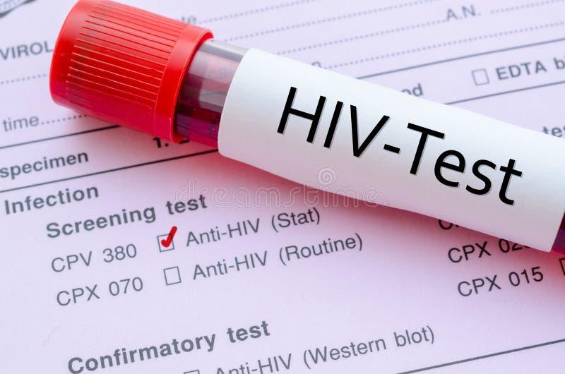 Form för HIV-infektionrastreringsprov royaltyfria bilder