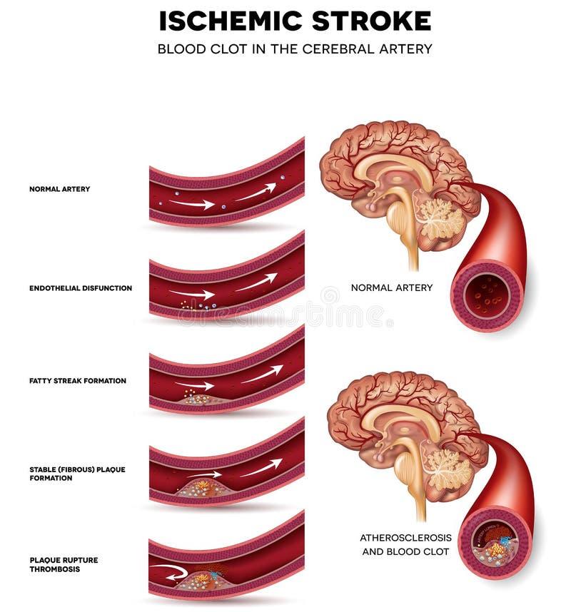Formação do coágulo de sangue na artéria cerebral ilustração do vetor