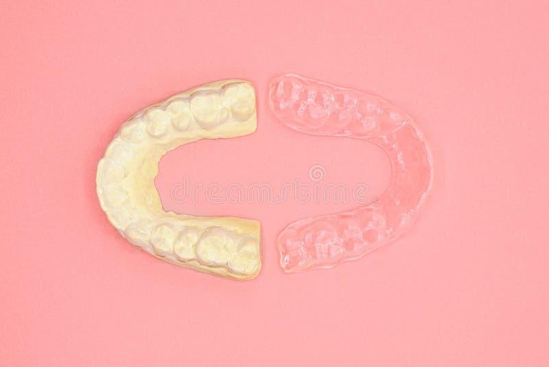 Forma di gesso dentale e formatore di silicone ortodontico Apparecchiatura mobile ortodontica per la correzione dentale, in rosa fotografia stock