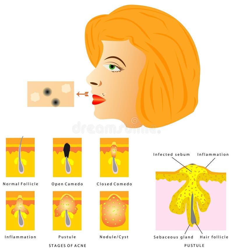 Formación de acné de la piel stock de ilustración
