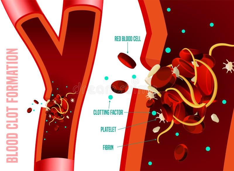 Formación del coágulo de sangre ilustración del vector