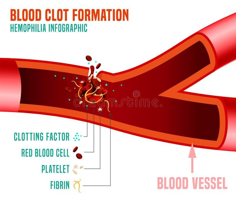 Formación del coágulo de sangre stock de ilustración