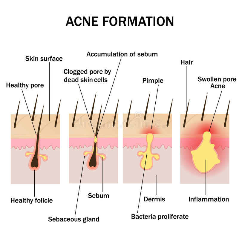 Formation of acne stock illustration