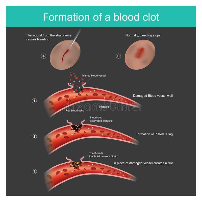 Formation of a blood clot. stock illustration
