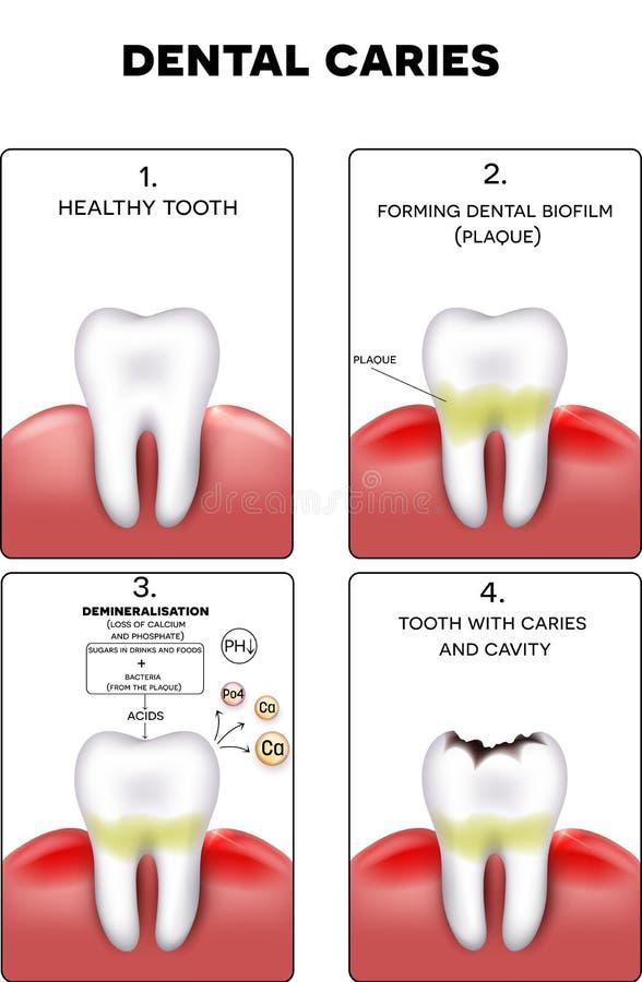 Formation de carie dentaire illustration stock