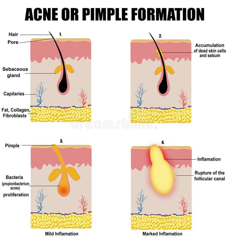 Formation de l'acné ou du bouton de peau illustration libre de droits