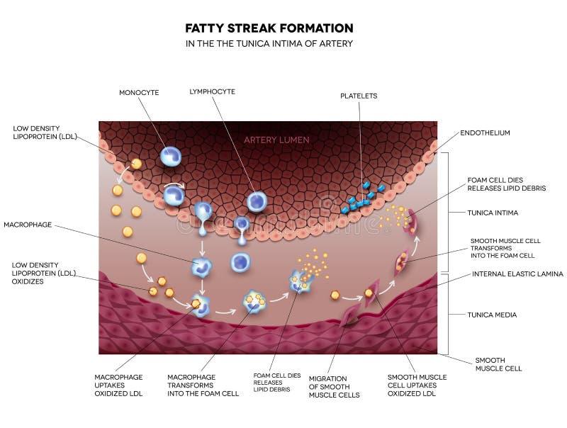 Formation grasse de filet dans l'artère illustration libre de droits